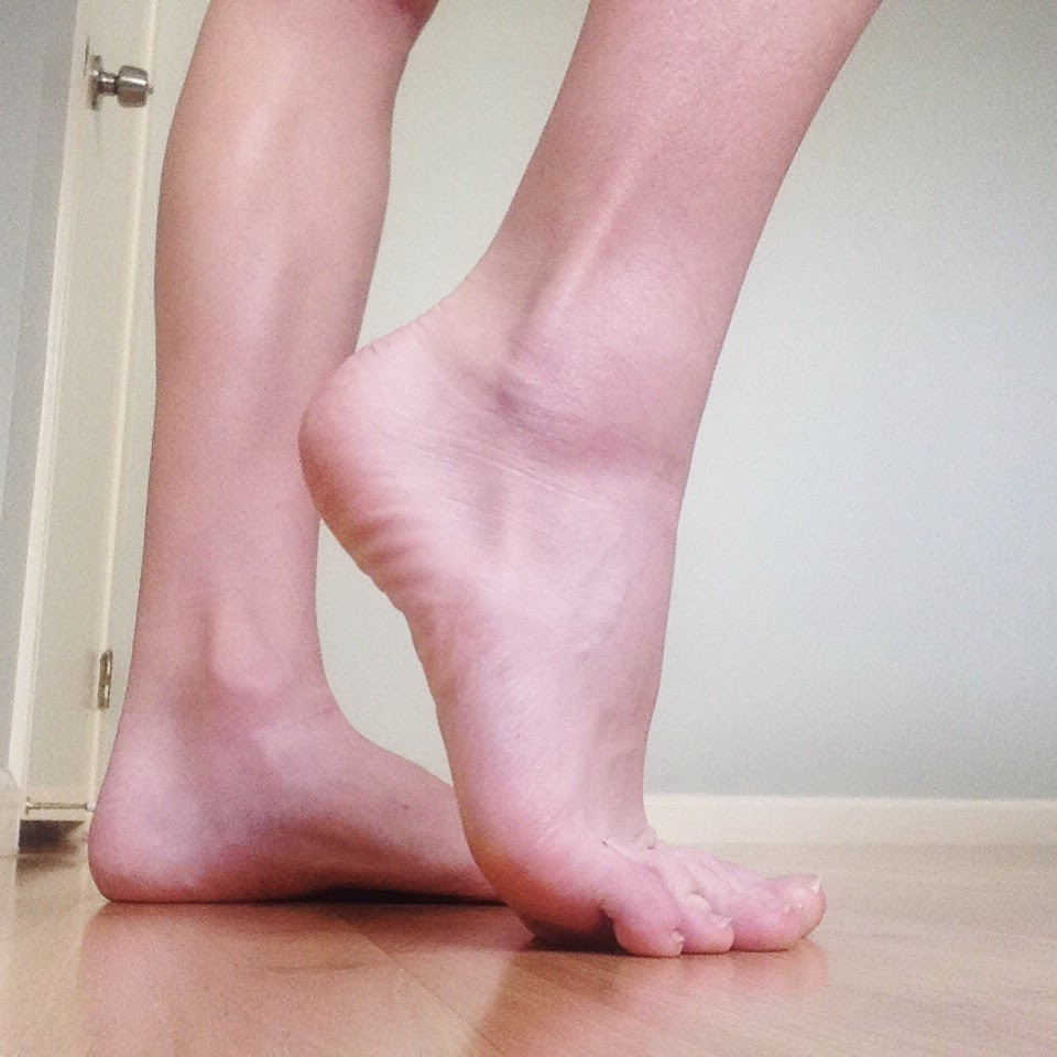peroneal tendon surgery treading lightly