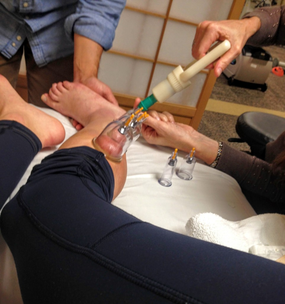 Benefits of Cupping for an Ankle Injury