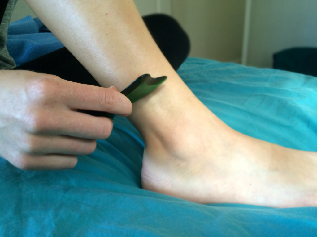 Gua Sha Scraping for Pain and Recovery