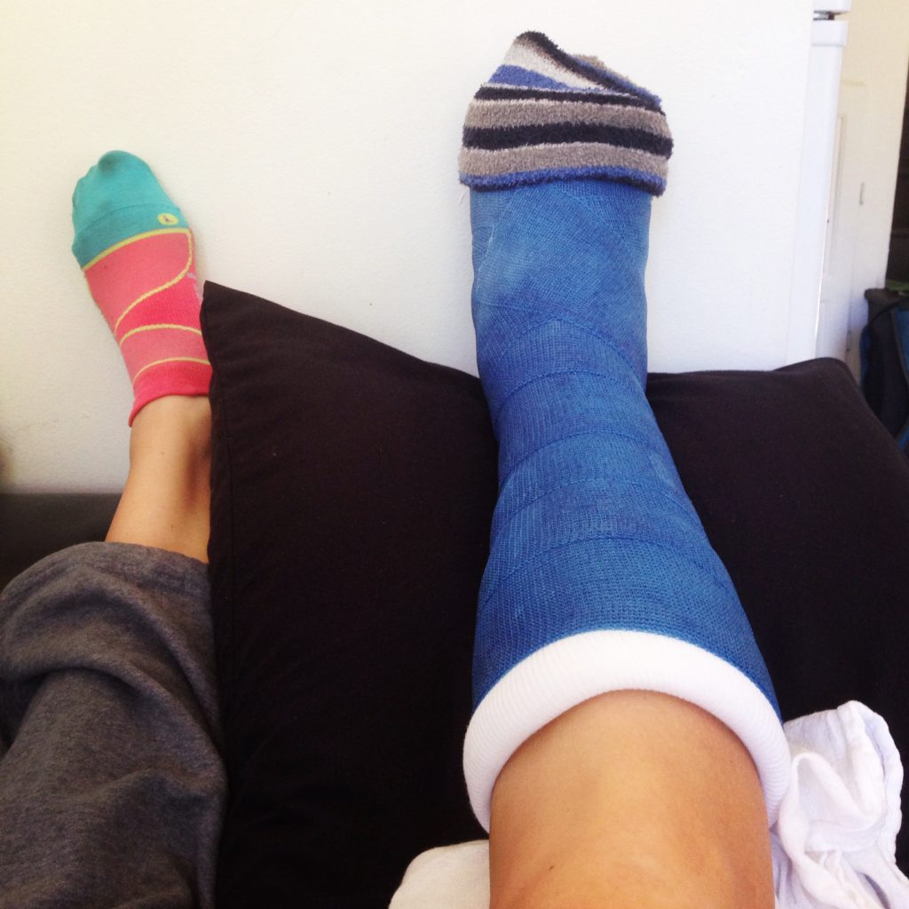 Peroneal Tendon Surgery Recovery -year-long injury